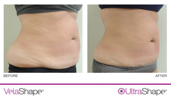 Ultrashape and Velashape, Before and After